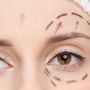 Forehead Lifting – Eyebrow Lifting