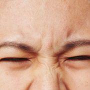 Surgical Treatment of Migraine
